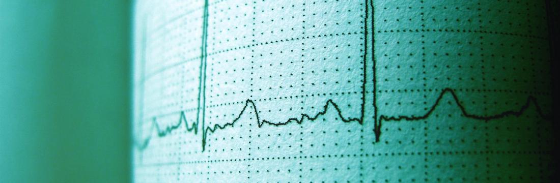 Revisió Cardiologia
