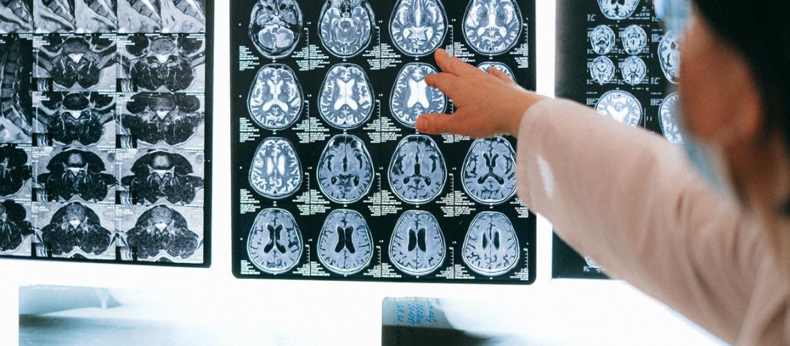 Control d'Alzheimer