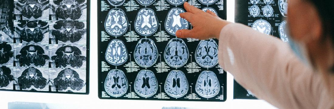 Control de Alzheimer
