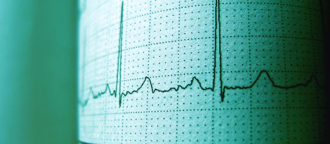 Revisión Cardiológica